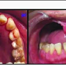 Teeth Setting Artificial Teeth Setting A Unilateral Group Function