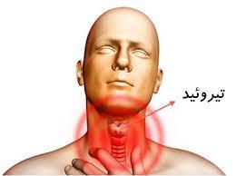 Image result for عکس بیمار تیروئید