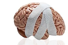 Concussion Grade Chart Concussions How They Can Affect You Now And Later