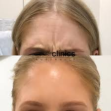 Led Light Therapy Penrith Penrith Westfield Laser Clinics Australia