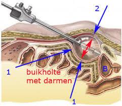 dubbele liesbreuk operatie