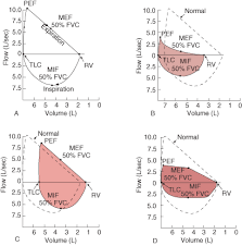 Pathophysiology Of Emphysema Flow Chart Airflow Lung Volumes And Flow Volume Loop Pulmonary