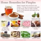 pimple problem solution at home