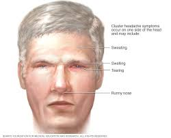 Cluster Headache Location Chart Cluster Headache Symptoms And Causes Mayo Clinic