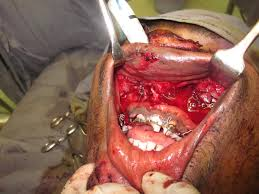 Le Fort Fracture Mandible And Le Fort 1 Fracture Maxilla Outcome