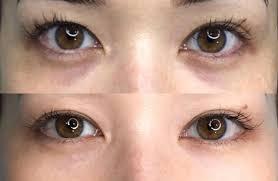 permanent under eye concealer tattoo