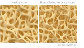 Breast Cancer And Osteoporosis Breast Cancer Now