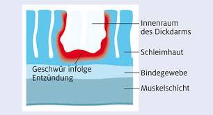 Wärme bei darmentzündung