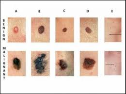Mole Chart For Skin Cancer Busy Boomers Is It Skin Cancer How To Tell A Harmless Mole