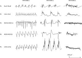 Eeg Patterns