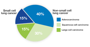 Types Of Lung Cancer Lung Cancer Foundation Of America