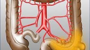 Divertikel im Darm (Divertikulose) Therapie: die Rolle der Ernährung