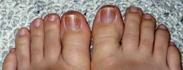 the beginnings of black toenail