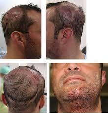 beard hair used to re scalp hair