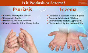 18 Ways to Beat Eczema, Acne and Psoriasis - DrJockers.com