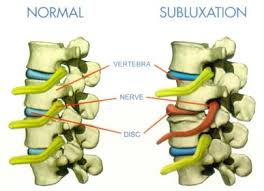 Chiropractic Subluxation Chart Out With The Old In With The New Chiropractic Care Why Your