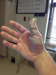 My Co Worker Took A Dose Of Hydrofluoric Acid To The Thumb Nsfw Wtf