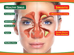 Sinus Chart For Sinuses Entoffice Org