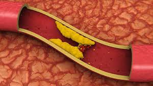 Lower Cholesterol To Reduce Heart Disease Risk