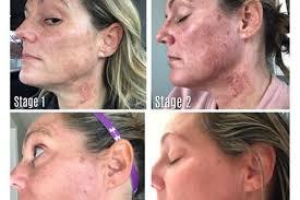 Intense Pulsed Light Laser Skin Changes After Intense Pulsed Light Ipl Charmed Medispa