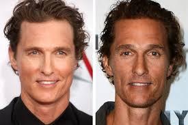 new celebrity hair transplants before