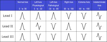 The Six Step Method For 12 Lead Ecg Interpretation Ems 12 Lead