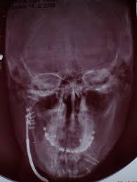 Бичелюстная дистракция в сочетании с гениопластикой описание  контрольная рентгенограмма после операции