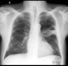 lung mass imaging wikidoc gallery