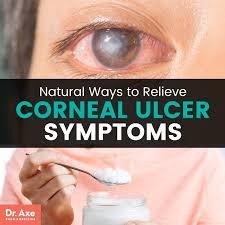 corneal ulcer dr axe