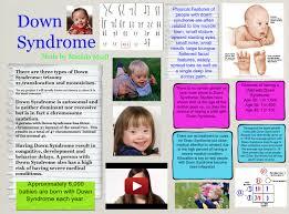 Down Syndrome Chromosome Disorder Down En Fitness