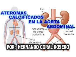 ateroma na aorta