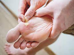 what causes warts and how to get rid of