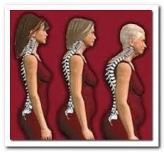 Osteoporose -symptome, anzeichen erkennen handeln!