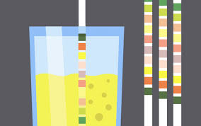 Urine Stick Colour Chart The Lowly Urinalysis How To Avoid Common Pitfalls