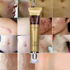 Aclene Gel Tcm Scar And Acne Mark Removal Gel Ointment