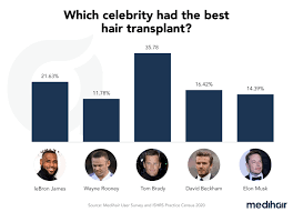 celebrities with hair transplant cost