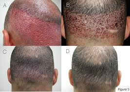 hair transplant how it works fue hair transplant in stages of recovery shown on spamedica toronto