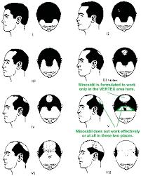 Normal Hair Growth Pattern Hair Loss Male Female Dht Hair