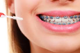 6 tools for cleaning braces chelian