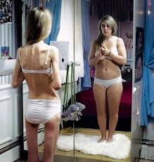 real anorexic people. Perfect Anorexic Anorexia Is A Very Debilitating Disease While It Looks Like There  Physical Problem The Real Problem One We Cannot See With Our Eyes But  Inside Real Anorexic People T