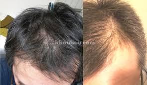 モヒカン短髪パーマ坊主薄毛でも似合うはげの目立たない髪型って