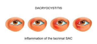 tear duct infection dacryocysis