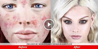 how to hide bad looking acne with makeup acne foundation routine flawless skin full coverage makeup