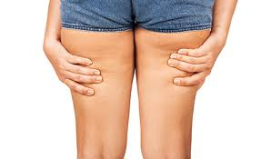Natron bad gegen cellulite