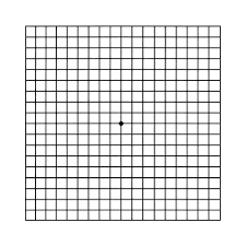 Types Of Amsler Grid Chart Glaucoma Cataract Prof Eytan Blumenthal How Should I