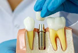 Many patients prefer the relative convenience of undergoing the procedure to remove all of their wisdom teeth. Dental Implants Procedure Cost Types Problems Safe