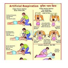 Electric Shock Treatment Chart In Hindi Pdf Artificial Respiration Chart India Artificial Respiration