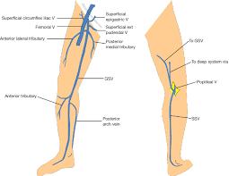 Leg Vein Chart Anatomy Of Gsv And Ssv With Common Variants Of Ssv Gsv