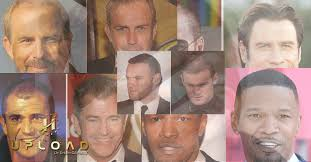 celebrities with a hair transplantation