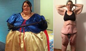 Queensland woman left with 6 STONE of excess skin after weight loss ...